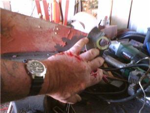grinder accident